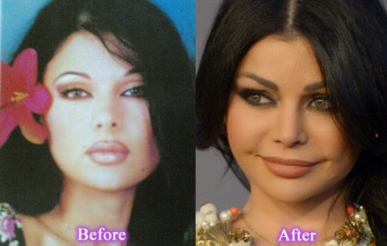هيفاء وهبي في التسعينات قبل عمليات التجميل
