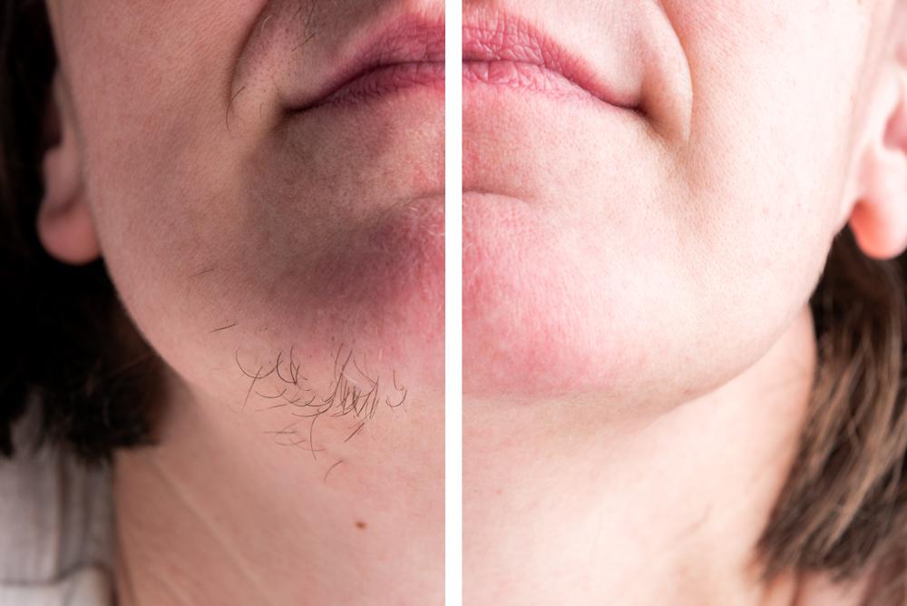 ازالة شعر الوجه بالليزر