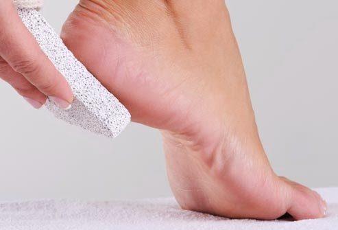 اليك طريقة استخدام الحجر الخفاف لتنعيم القدمين أنوثة Ounousa موقع الموضة والجمال للمرأة العربية