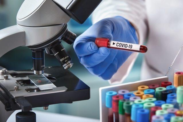 كلّ ما يهمّك معرفته عن إمكانيّة توقف إنتشار فيروس كورونا في الصيف تجدينه في التالي