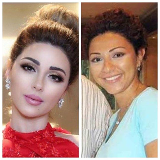 """<p dir=""""RTL"""">هذه الصورة النادرة لميريام فارس تم نشرها على مواقع التواصل الاجتماعي، إذ تبدو مختلفة عما هي عليه الآن خصوصاً بعد خضوعها لتجميل أنفها ونفخ شفتيها بالبوتوكس.</p>"""