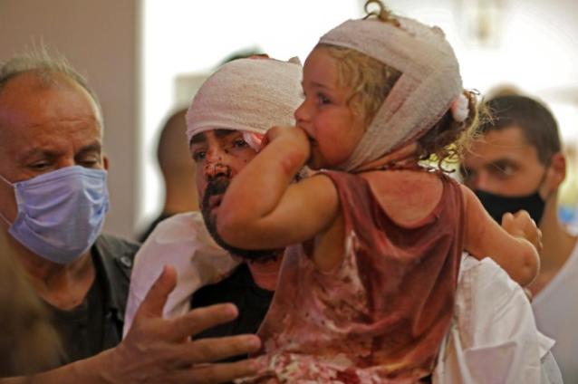 كيف يمكن أن تقدّموا المساعدة لدعم مصابي انفجار بيروت؟